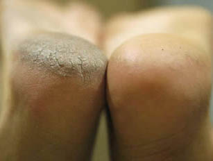 Before&AfterFirstTreatment-callus-peel